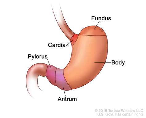 Changing U.s. Incidence Of Lower Stomach Cancer