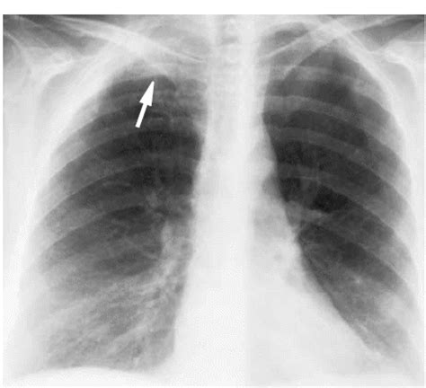 pancoast tumor xray apex cancer chest ct cxr scan shadow seen mri shows