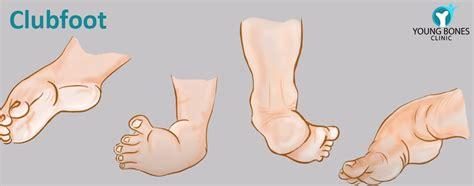 Clubfoot is a birth defect where the foot or feet turn inward. Clubfoot - Dr Ratnav Ratan