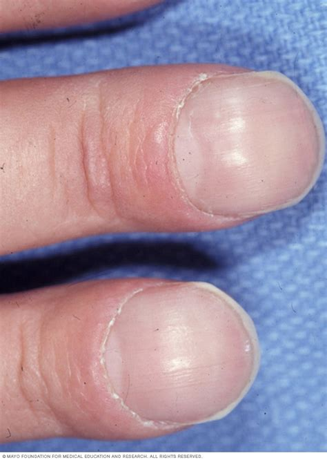 asbestosis symptoms   mayo clinic