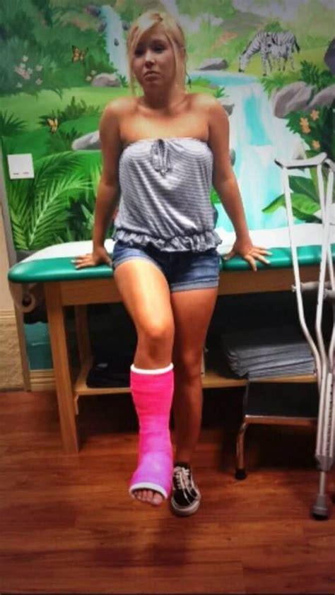 Slc Cast Leg Cast Long Leg Cast It Cast