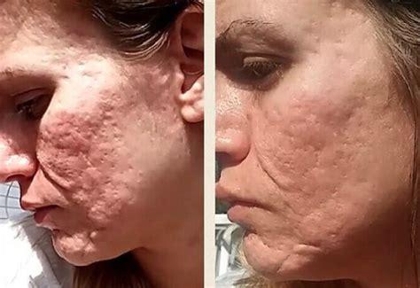 Dermarolling At Home - Exfoliators - Skin Care