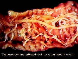 Hot Dogs Give You Worms - Truth about Parasites ...