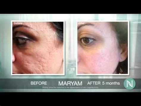 Nerium Before And After Photos  Wwwlookyoungerin10days