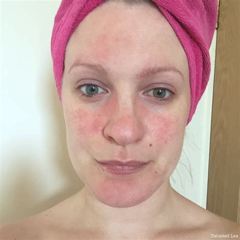 Rosacea Images For Redness Images