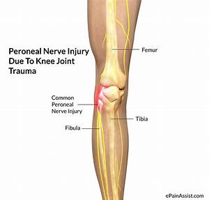 Peroneal Nerve Injury