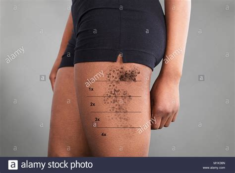 midsection view   laser tattoo removal  womans thigh