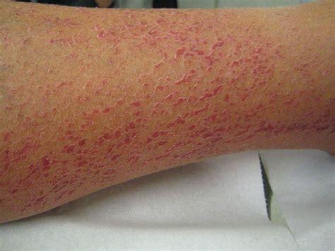 rode vlekken op de huid