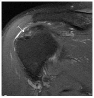Rotator cuff disorders: How to write a surgically relevant ...
