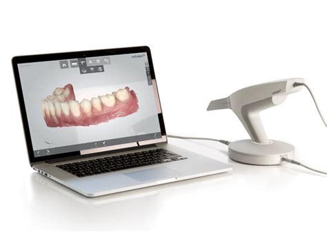 3shape Color Digital Scanner Treatment By Charlotte Dentists
