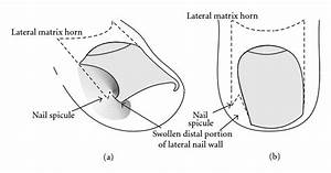 Schematic Illustration Of The Adolescent Type Of Ingrown