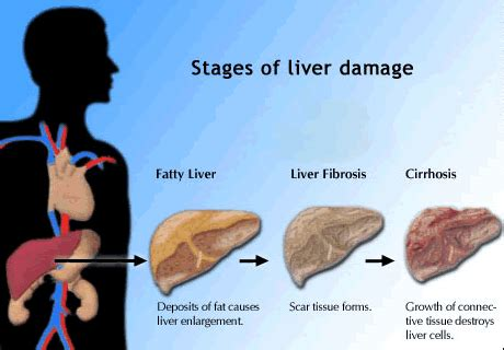 The Grapevine Updated Main Causes Of Liver Damage. Where Can I Have Stickers Made. Hoarders Logo. Kid Education Banners. 3 Inch Stickers. Private Road Signs Of Stroke. Kick Buttowski Stickers. Country Boy Tattoo Lettering. Freckle Signs