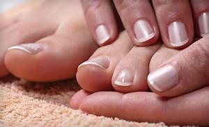 Можно ли красить ногти когда есть грибок