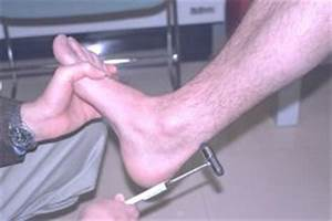 The ankle reflex is elicited by holding the relaxed foot ...