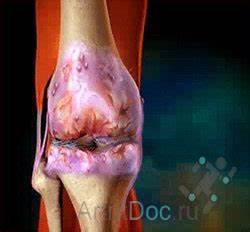 Лечение медикаментозное артроза суставов