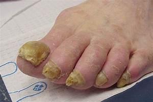Женский грибок на ногах