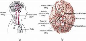 6 A  Blood Is Supplied To The Entire Brain By Two Main Arteries  The