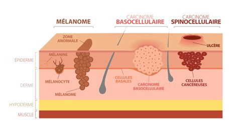 cancer peau photo cancers de la peau
