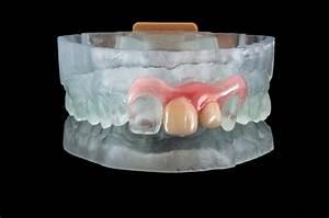 Valplast Prothese Abrechnung : arfona and valplast introduce new method for 3d printing dentures ~ Themetempest.com Abrechnung