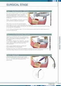 Cortex Dental Implants Surgical Manual By Cortex Dental