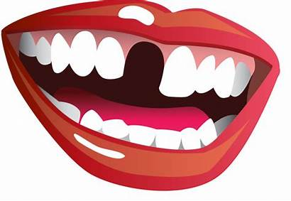 Mouth Smile Clipart Teeth Tooth Transparent Open