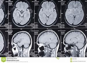 Ct Scan Brain Computer Axial Tomography Scan Cat Of A Head Stock Photo