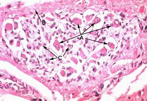 Low Power Section Through the Submandibular Gland