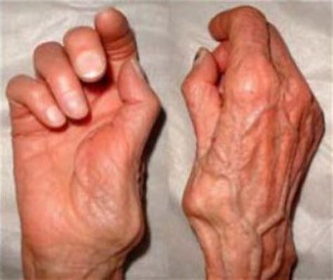Knobbel duim