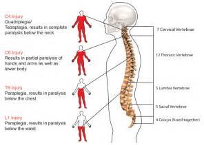 Spinal Cord Injury - Nursing - Pinterest Spinal Cord Injuries