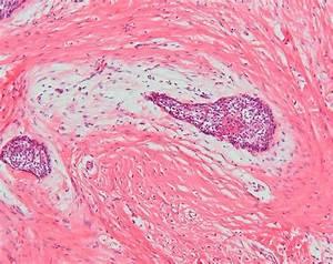 Desmoplastic ameloblastoma. Epithelial tumour islands ...
