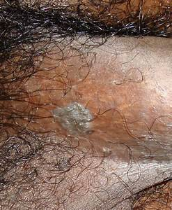 Genital Warts Related Keywords - Genital Warts Long Tail ...