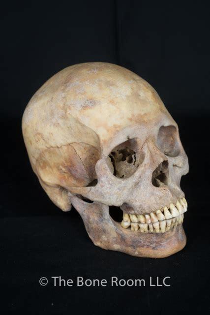 pathological human skulls  sale  bone room