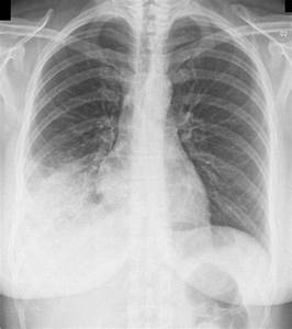 Pneumonia Manifestation Seen And Diagnosed Via X-Rays ...