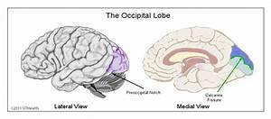 Neuroanatomy Online  Lab 1