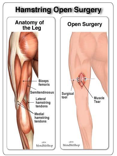 Biceps Femoris Tendon Rupture