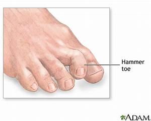 Hammer toe: MedlinePlus Medical Encyclopedia Image