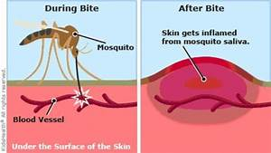How To Stop An Unbearable Mosquito Bite Itch In Just 1