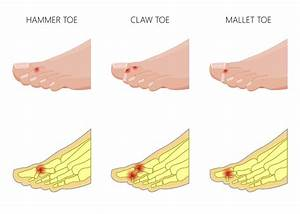 Treatment For Foot Joint Pain