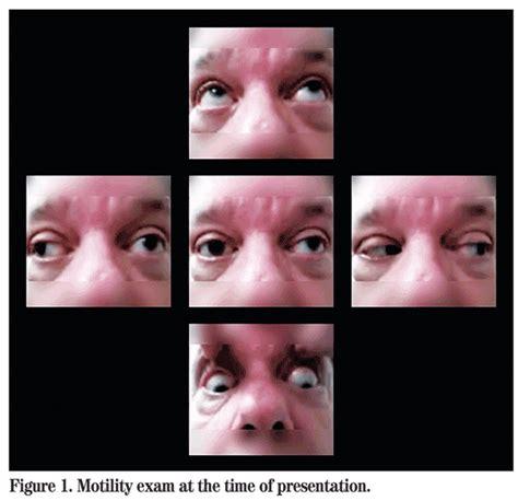 wills eye resident case series
