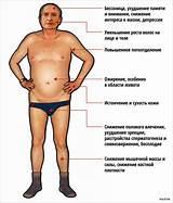 Психологическая причина болезни псориаз
