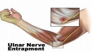 Tendonitis In Inner Elbow
