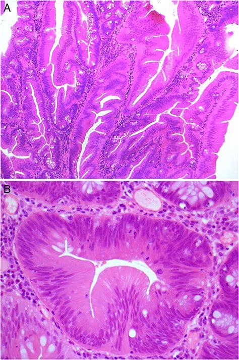 traditional serrated adenoma tsa morphological