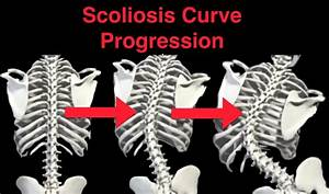 Scoliosis curve to the left