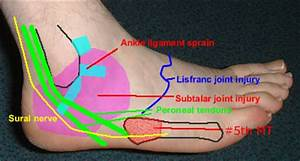Peroneal Tendons Clinical