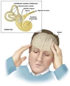 Vertigo, dizziness, and disequilibrium are defined; common causes are ...  Agoraphobia Dizziness / Balance / Vestibular Disorders