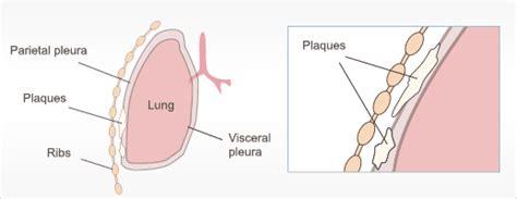 asbestos related diseases copd pleural effusion