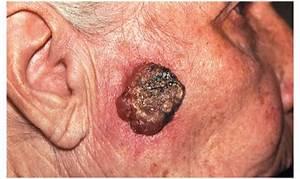 Вирус папиллома лечение народными средствами