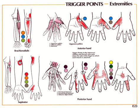 carpal tunnel syndrome gadibodycom neuromuscular therapy strain counterstrain pain relief