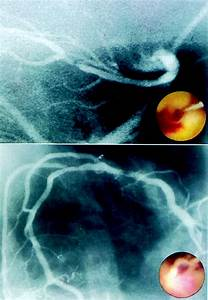 Coronary Thrombi Increase Ptca Risk