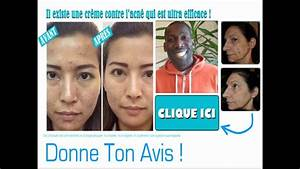 Start And Stop Avis : curaspot avis youtube ~ Medecine-chirurgie-esthetiques.com Avis de Voitures